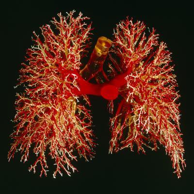 Resin Cast of Pulmonary Arteries And Bronchi-Martin Dohrn-Photographic Print