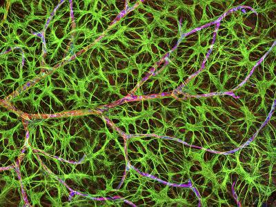 Retina Blood Vessel And Nerve Cells-Thomas Deerinck-Photographic Print