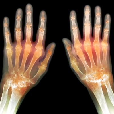 Rheumatoid Arthritis of the Hands, X-ray-Du Cane Medical-Photographic Print