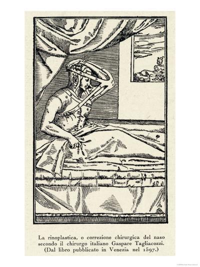 Rhinoplasty: Nose Correction--Giclee Print