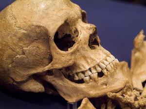 Skull of Early Settler by Richard Nowitz