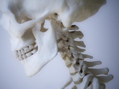 Skeleton head by Robert Llewellyn