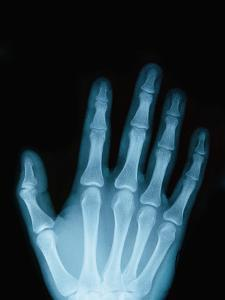 X-Ray of a Hand by Robert Llewellyn