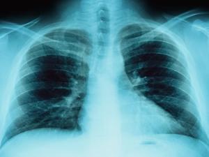 X-Ray of Dark Lungs by Robert Llewellyn