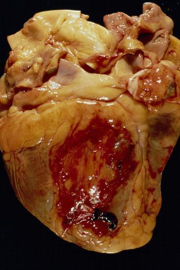 Ruptured Heart--Photographic Print