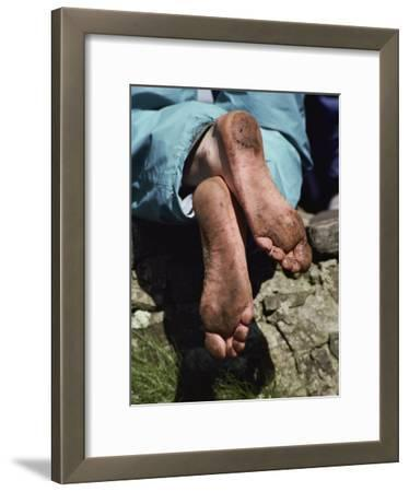 Close up of a Pilgrims Feet after Walking the Stations of the Cross on Lough Derg