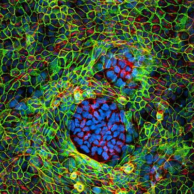 Cancer Cells, Light Micrograph
