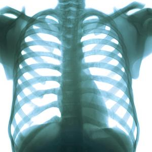 Chest X-ray of a Healthy Human Heart by Science Photo Library