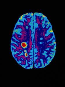 Col. MRI Scan of a Brain with Multiple Sclerosis by Science Photo Library