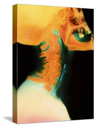 Col X-ray of Object Safety Pin Lodged In by Science Photo Library
