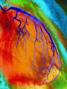 Coloured Angiogram of Coronary Artery of the Heart by Science Photo Library