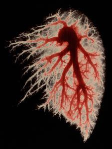 Coloured Angiogram of Pulmonary Arteries of Lung by Science Photo Library