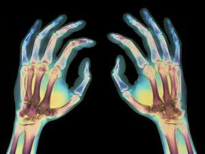 Coloured X-ray of Healthy Human Hands by Science Photo Library
