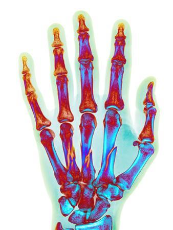 Fractured Palm Bones of Hand, X-ray by Science Photo Library
