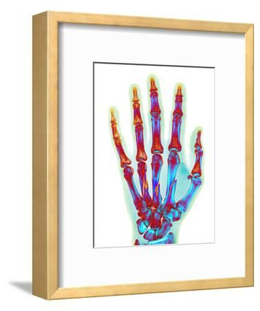 Fractured Palm Bones of Hand, X-ray