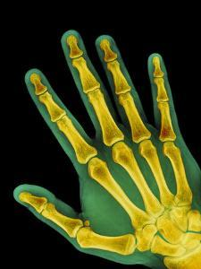 Healthy Adult Hand, X-ray by Science Photo Library