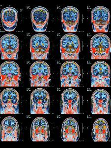 Healthy Brain, MRI Scans by Science Photo Library
