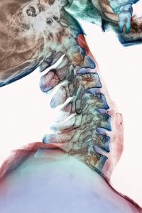Neck Vertebrae Flexed, X-ray by Science Photo Library