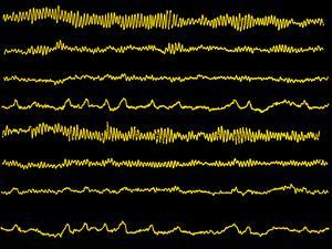 Normal EEG Read Out of the Brains Alpha Waves by Science Photo Library