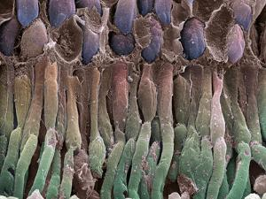 Retina Rod Cells, SEM by Science Photo Library