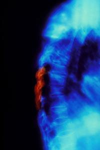 X-ray of Osteoporosis of the Thoracic Spine by Science Photo Library