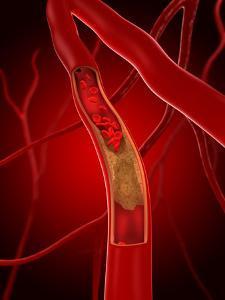 Narrowed Artery, Artwork by SCIEPRO