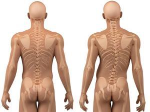 Scoliosis of the Spine, Artwork by SCIEPRO