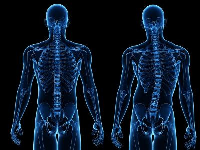 Scoliosis of the Spine, Artwork-SCIEPRO-Photographic Print