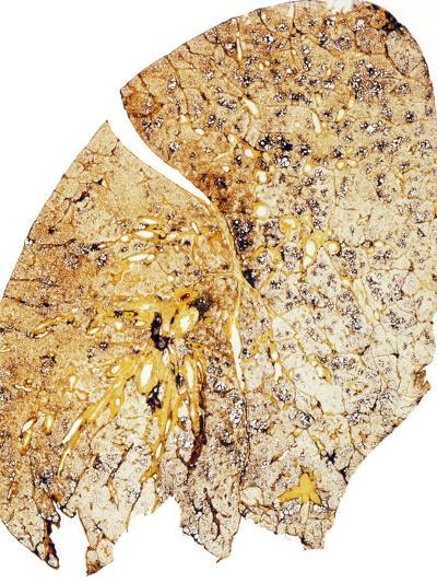 Section of Human Smoker's Lung Showing Tar-James Stevenson-Photographic Print