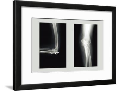 Shattered Elbow Repair--Framed Art Print