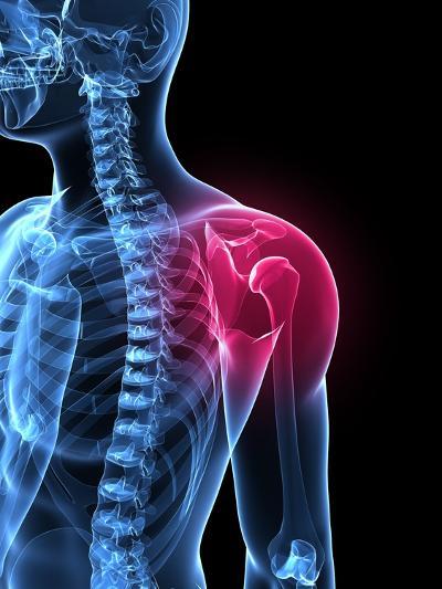 Shoulder Pain, Conceptual Artwork-SCIEPRO-Photographic Print