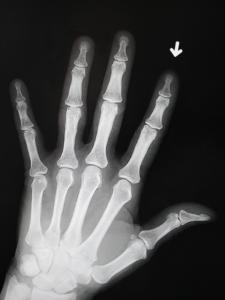 Hand Bones by Simon Jarratt