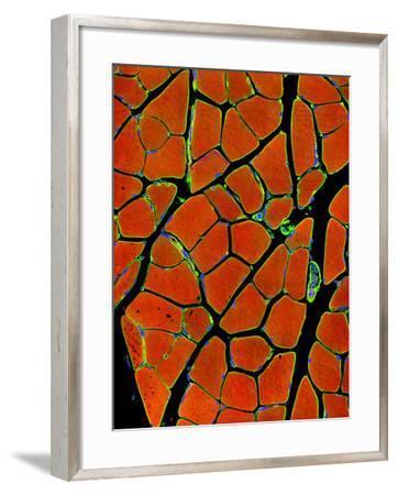Skeletal Muscle Fibres, Light Micrograph-Thomas Deerinck-Framed Photographic Print