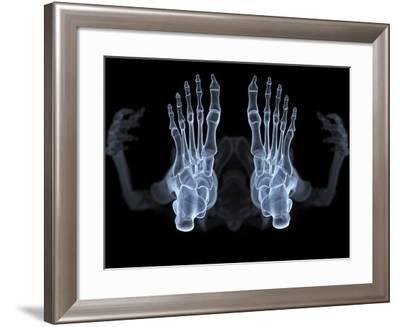 Skeleton From Below, X-ray Artwork-David Mack-Framed Photographic Print