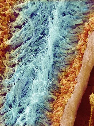 Sperm in rat testes-Micro Discovery-Photographic Print