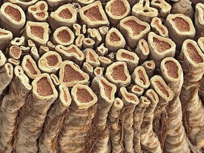 Spinal Root Nerves, SEM-Thomas Deerinck-Photographic Print
