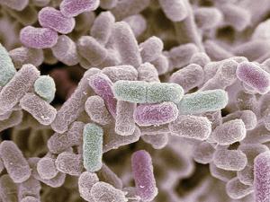 E Coli Bacteria, SEM by Steve Gschmeissner