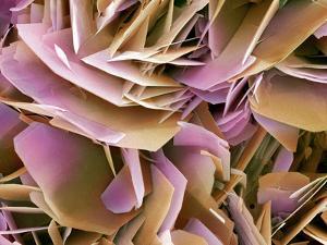 Kidney Stone Crystals, SEM by Steve Gschmeissner