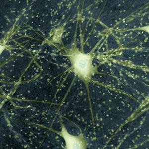 Motor Neurons, Light Micrograph by Steve Gschmeissner