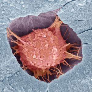 Osteoblast Bone Cell, SEM by Steve Gschmeissner