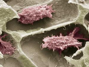 Osteoclasts In Bone Lacunae, SEM by Steve Gschmeissner