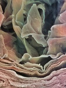 Skin Surface, SEM by Steve Gschmeissner