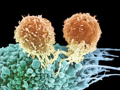 T Lymphocytes And Cancer Cell, SEM