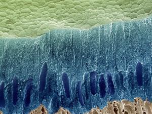 Tooth Enamel Formation, SEM by Steve Gschmeissner