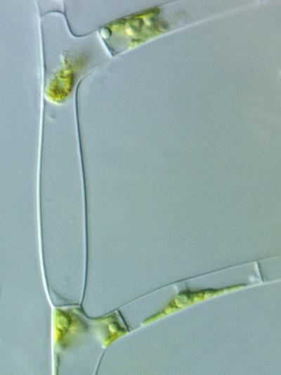 Stigeoclonium, a Branched Filamentous Green Alga, Often Forming Hair-Like Extensions Cells-Peter Siver-Photographic Print