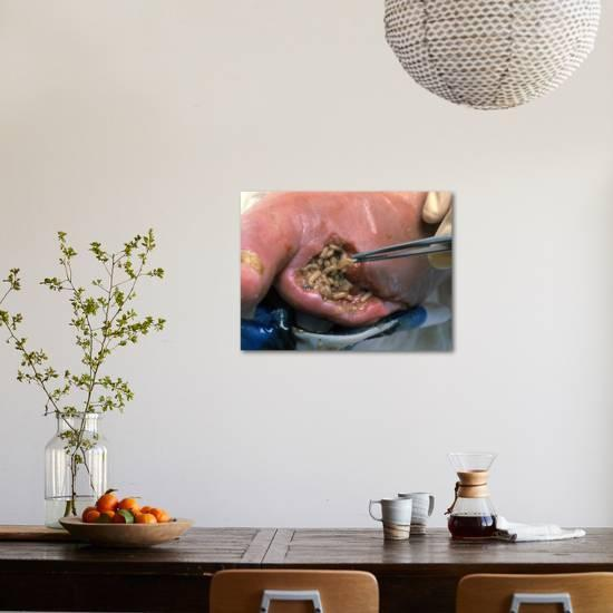 Surgeon Placing Maggots In a Wound To Clean It Photographic Print by Volker  Steger | Art com