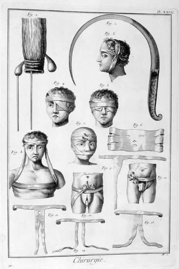 Surgery, 1751-1777-Denis Diderot-Giclee Print
