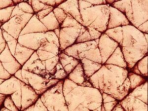 Human Skin Surface, SEM by Susumu Nishinaga