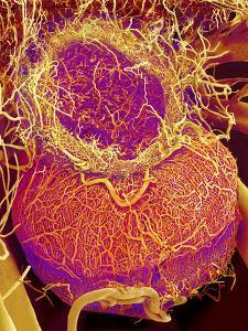 Pituitary Gland Blood Vessels, SEM by Susumu Nishinaga