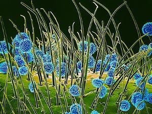 Pollen Grains on a Harelquin Bug, SEM by Susumu Nishinaga